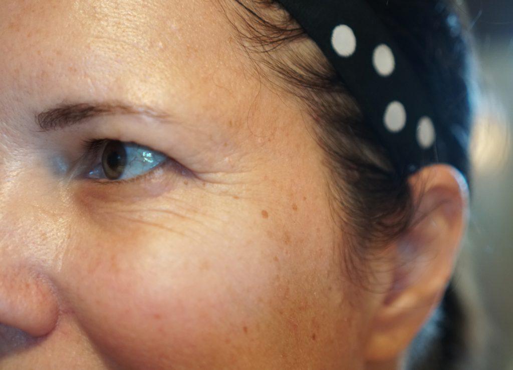 fine lines around eyes
