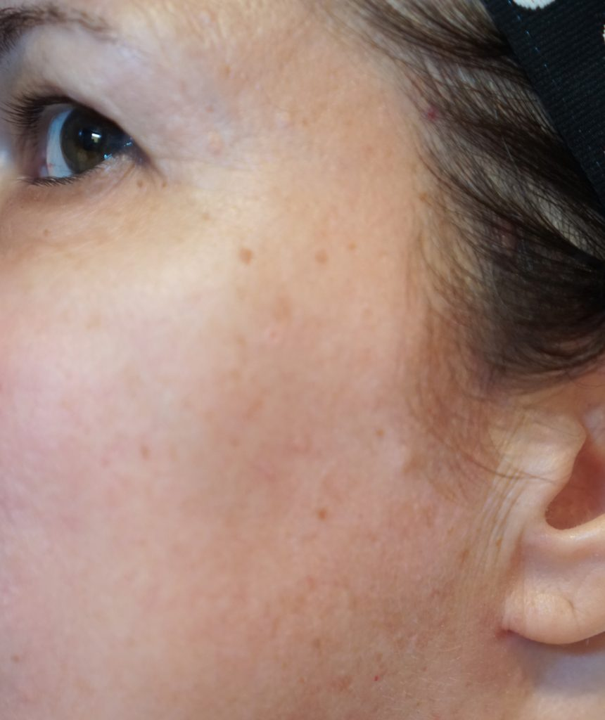 age spots and uneven skin tone