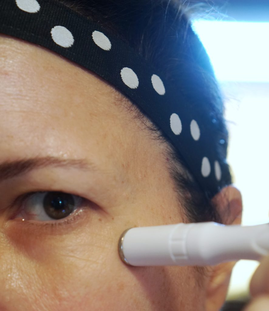 home microdermabrasion with Trophy Skin
